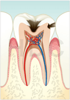 むし歯 C2